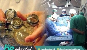 Pakistans First Mechanical Heart Pump Implantation